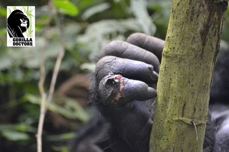 Kabandize's wound on his right finger. Photo credit/Gorillas Doctors